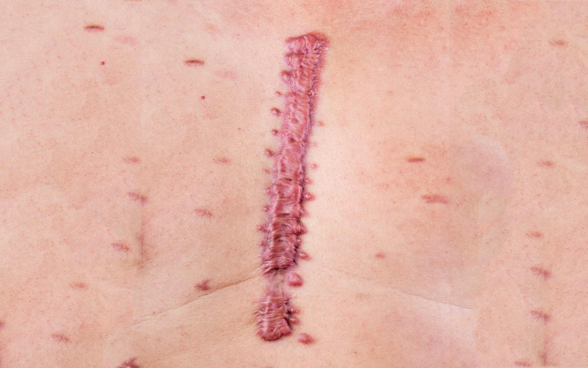KELOID REMOVAL